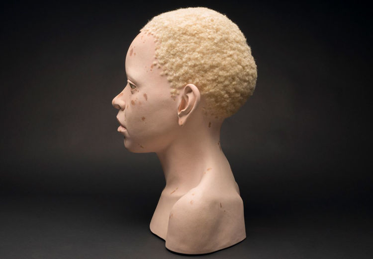 Picture of Africa Child with Albinism No. 3
