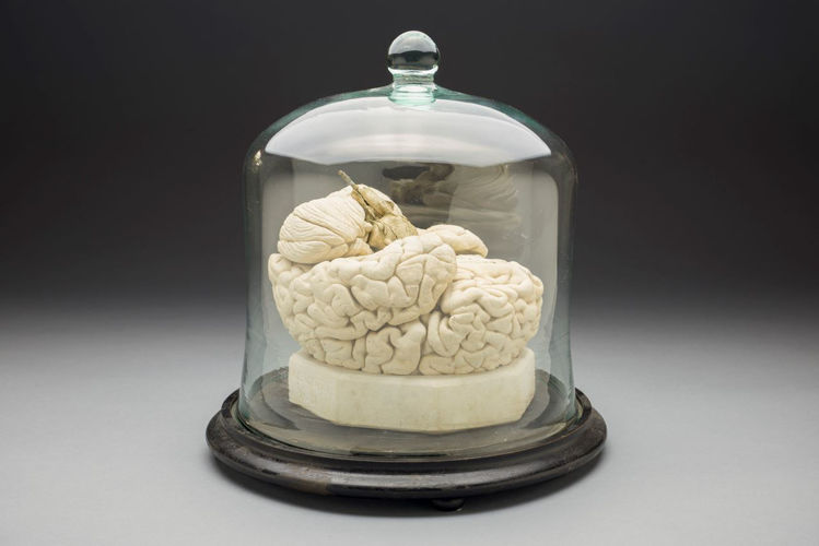 Picture of Brain Medical Model
