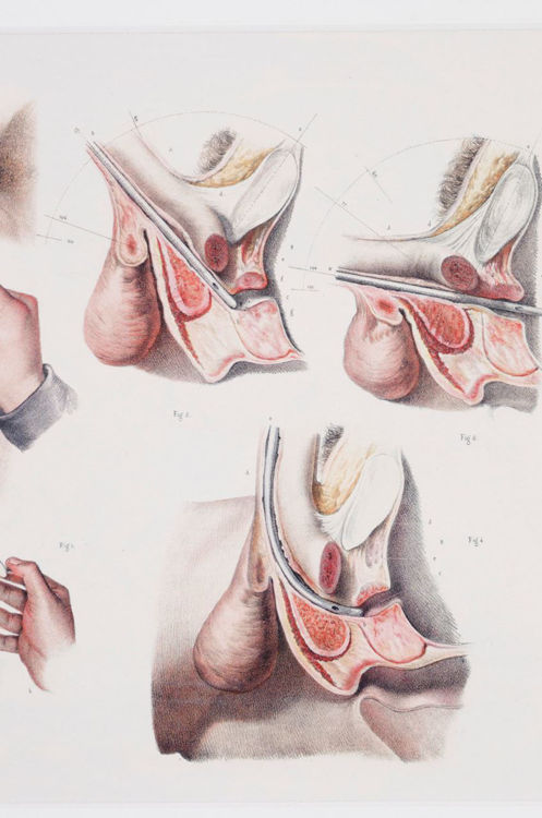 Picture of Medical Reproductive Anatomy Drawing